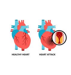 Healthy and unhealthy heart heart vector