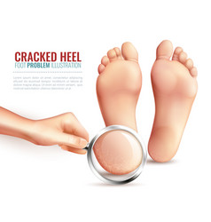 cracked heels vector image