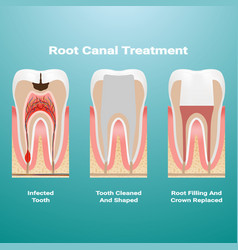 pulpitis root canal therapy infected pulp is vector image