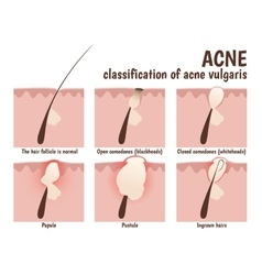Structure of the hair follicle vector