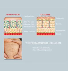 Forming underskin cellulite vector