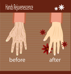 hands care before after effect vector image
