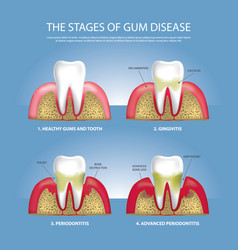 Human teeth stages of gum disease vector