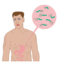 Stop helicobacter in stomach sign vector