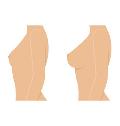 Female breast before and after augmentation vector