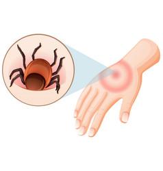 Tick bite human hand vector