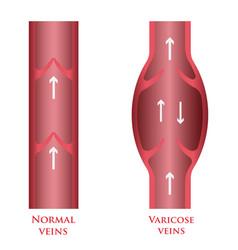 varicose veins vector image vector image