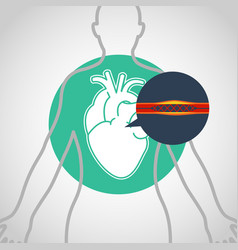 cardiac catheterization logo icon design vector image