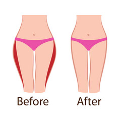 fat and slim girls hips before and after vector image