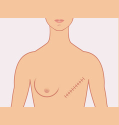 mastectomy vector image