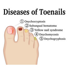 Diseases of toenails vector