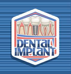 logo for dental implant vector image