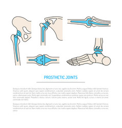 implantation joint skeleton vector image