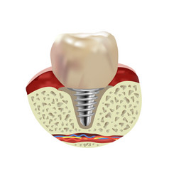 Artificial human tooth implant cross section vector