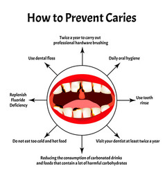 How to prevent appearance caries bad vector