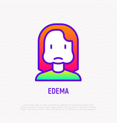 Edema thin line icon woman with swollen cheeks vector