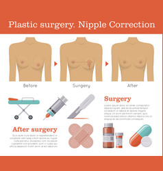 nipple correction plastic surgery vector image