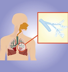 Respiratory system Bronchi increased vector image vector image