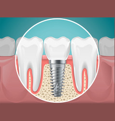 Stomatology dental implants and vector