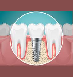 Stomatology dental implants vector