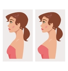 Chest before and after plastic vector image