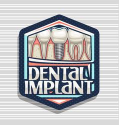 Logo for dental implant vector