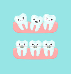 braces alignment stomatology concept cute vector image