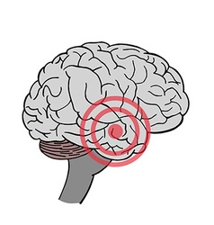 Brain in Headache Place of pain in brain vector image