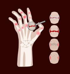 Rheumatoid disease arthritis medicine education ve vector