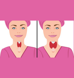 Thyroid healthy and enlarged thyroid hypothyroid vector