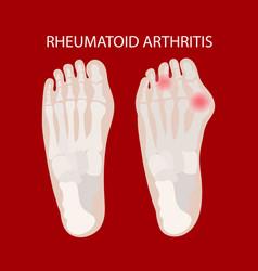 Rheumatoid leg arthritis medicine education scheme vector