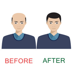 man before and after hair treatment vector image