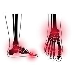 Arthritis foot concept vector