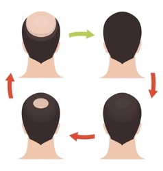 Male hair loss stages set vector image