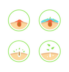 Acne or blackhead pore cleansing process vector