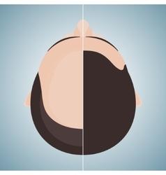 Bald man before and after hair transplantation vector
