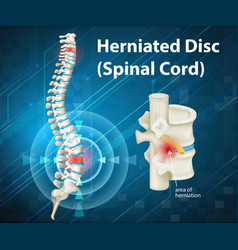 Diagram showing herniated Disc vector image
