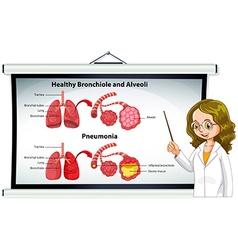 Doctor explaining healthy bronchiole and alveoli vector