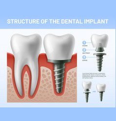 Dental teeth implant implantation procedure or vector
