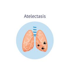 Atelectasis a medical scheme lung disease vector