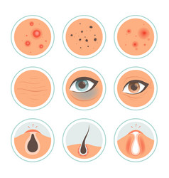 skin problems dark circles woman infection spot vector image