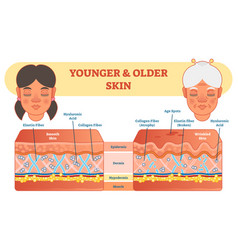 older and younger skin comparison diagram scheme vector image