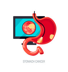 Gastric cancer concept in flat style icon vector