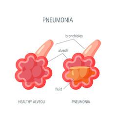 Pneumonia disease icon in flat style vector