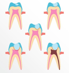 Stage caries vector