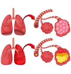 Human lungs with pneumonia vector image