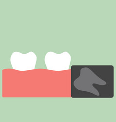 X-ray wisdom tooth vector