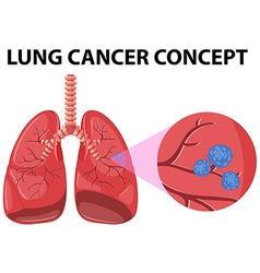 Diagram lung cancer concept vector