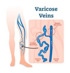varicose veins with irregular blood flow vector image