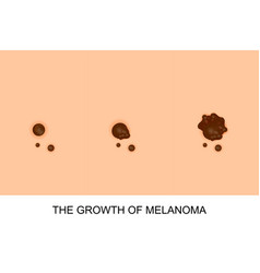 Growth of melanoma vector